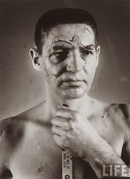 Le visage du gardien Terry Sawchuck capturé par Life Magasine. avant l'arrivé des masques.
